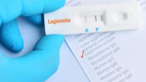 a test for legionella